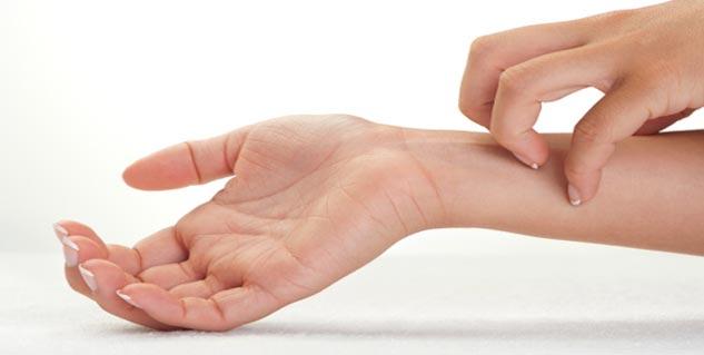 Eczema and Magnesium Deficiency